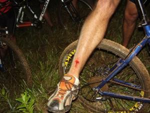 Veja como ficou a canela do Bocão após a briga com o pedal Júnior Baiano